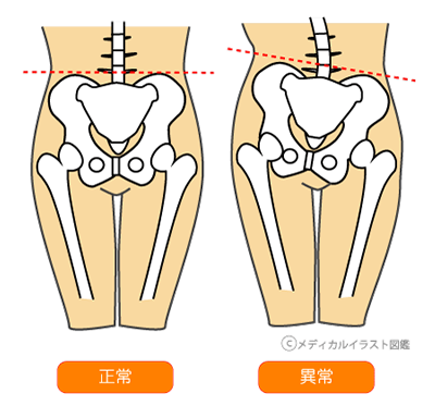 skeleton-distortion03